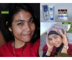 Obat Pemutih Wajah Cream Tensung call / sms 0821 3302 4747 + 2BBBCFBA